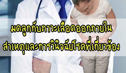 มดลูก กับภาวะเลือดออกภายใน สาเหตุและการวินิจฉัยโรคที่เกี่ยวข้อง